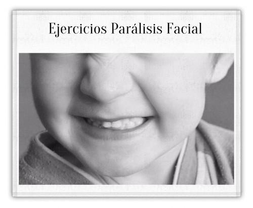 ParalisisFacial_1
