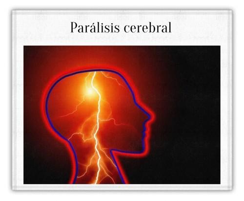 paralisiscerebral_1