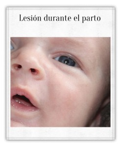 paralisisfacial_2