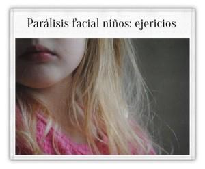 paralisisfacial_3