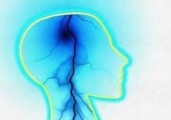 Silueta Cerebral