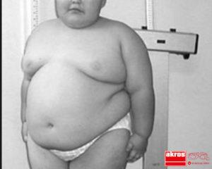 El síndrome de Prader-Willi provoca obesidad